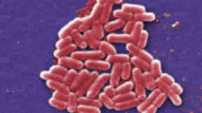 What is E Coli?