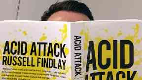 Acid Attack by Russell Findlay
