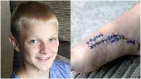 Shane McConnell, 12, Edinburgh schoolboy who survived shark attack in Bahamas.