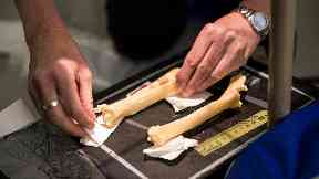 Test: Professor David Gardner setting up radiographs