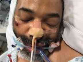The injured man police are hoping to identify.