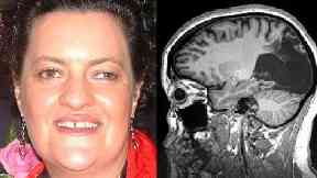 Milena Canning: 48-year-old was blinded 18 years ago.