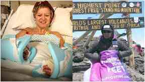 Corinne: Recovering post-op, and at summit of Kilimanjaro.