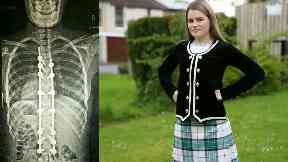 Dancer who braved major spine operation back to winning ways