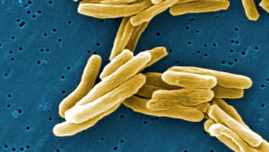 Tuberculosis: Breakthrough could save thousands of lives (file pic).