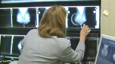 Breast screening: Government has announced review.