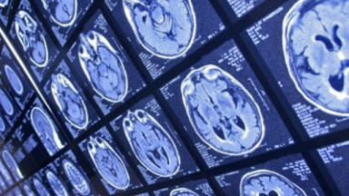 Health: The new scanner can extract more information than a traditional MRI machine.