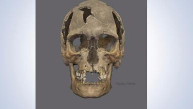 Skull: The man's face was reconstructed based on his skull.