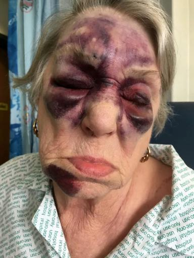 Bruised: Mrs Symmonds' granddaughter posted the image on social media.