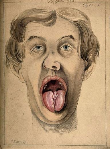 Pencil and watercolour drawing illustrating lesions on tongue and upper lip of a man suffering from syphilis.