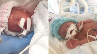 Little miracles: Emelia and Elliot were born three months premature.