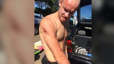 Charlie Fry began surfing after taking up work at a hospital in New South Wales.