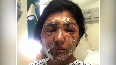 Resham Khan pictured shortly after the attack