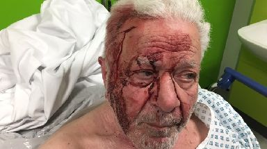 The 79-year-old man was left with serious head injuries and a fractured hip.