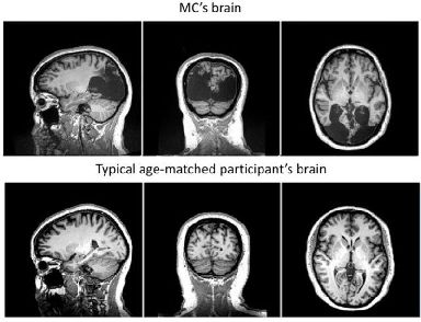 Milena Canning's brain compared with a regular person's brain of the same age.