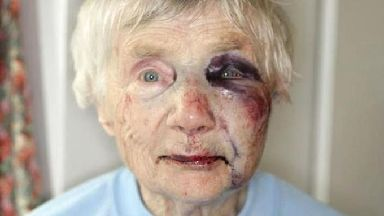 Blanche Rowlands suffered facial injuries and a broken arm when she was assaulted.