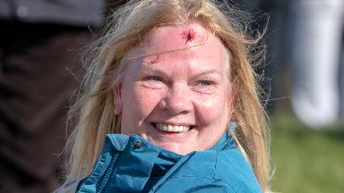 Struck: The spectator was pictured bleeding from a head wound.