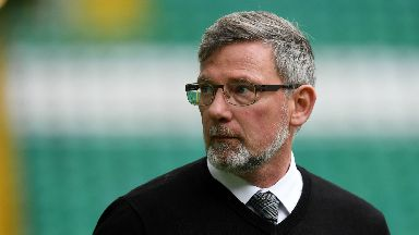 "Worried: Craig Levein says he's ""worried about the game""."