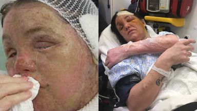 Scarred for life: Teresa Townsley was attacked last year.