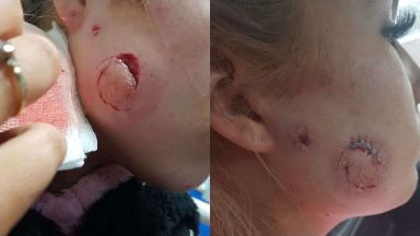 Kyra Strachan: She was allegedly attacked in Dundee.