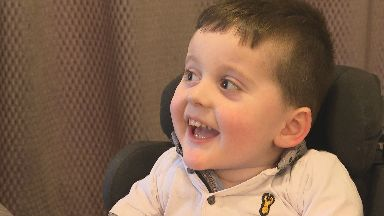 Zac: The little boy's family were told he may not live to his second birthday.