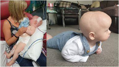 Alana Brownie's son Fraser's skull was put back together.