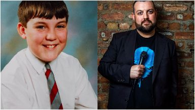 Colin Higgins is using his childhood ordeal to make people laugh.
