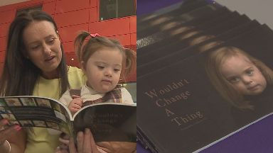 Inspirational: The new book is aiming to change misconceptions around Down's syndrome.
