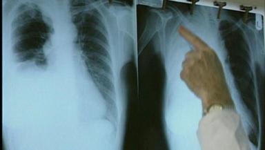 Asbestos: deadly health consequences