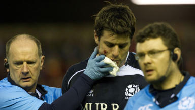 Hugo Southwell was forced off with a facial injury in the defeat to Wales and will miss the Ireland fixture as a result.