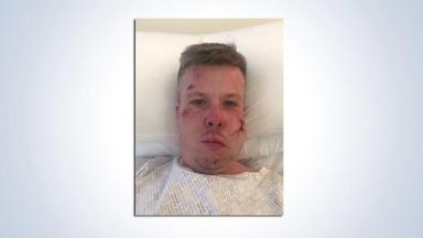 Bar boss: Boss of Hoops Bar Neil O'Donnell injured after Ajax attack.