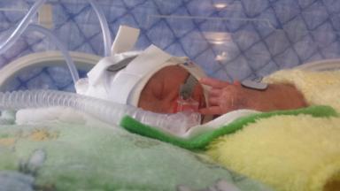 Saved: Transfusion for baby Conan born 15 weeks premature.