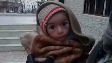 A malnourished child is held up to a camera in Madaya