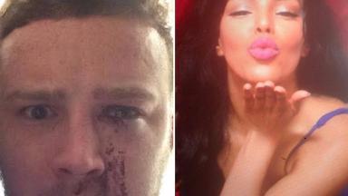 Justin Lloyd, left, was stabbed in the eye with Shadiya Omar's stiletto heel.