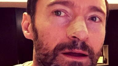 X-Men star Hugh Jackman urges people to use sunscreen after having cancerous growth removed from his face