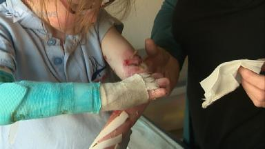 My Story: The young girl suffering from a rare skin condition
