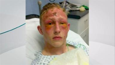 Lee Elliott suffered burns to his eyes and may lose his sight in one eye.