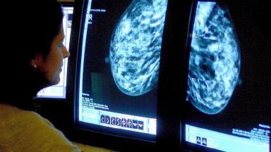 Consultant analysing mammogram