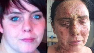 Carla Whitlock was permanently blinded in one eye in the attack.