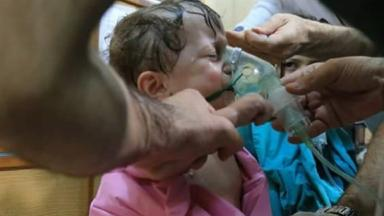 A child breathes through an oxygen mask after the latest attack.