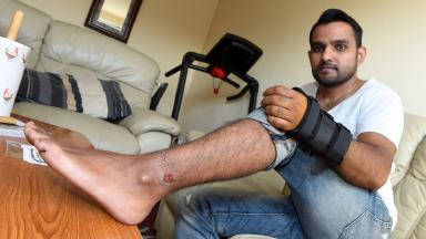 Amir Hijazi: Bitten by one dog then knocked over by the other.