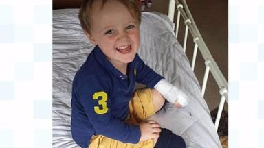 Reuben Harvey-Smith was taken to A&E at Ipswich Hospital after accidentally burning himself