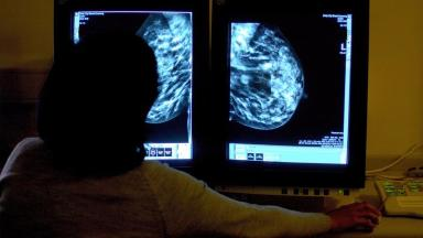 HRT could increase the risk of breast cancer by a third.