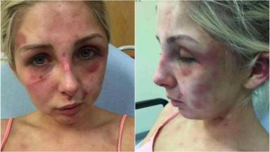 Bruised: Kelsie Skillen was subjected to violent attack by ex-boyfriend.