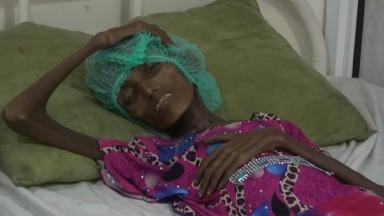 A malnourished woman in Hodeidah Hospital in Yemen