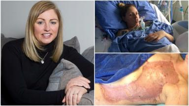 Lesley Kane: Mother reveals ordeal after suffering flesh-eating bug.