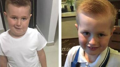 Luke Stewart, from Tranent in East Lothian, before and after brain tumour treatment.