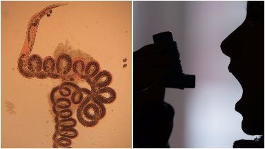 Roundworms could help prevent asthma attacks.