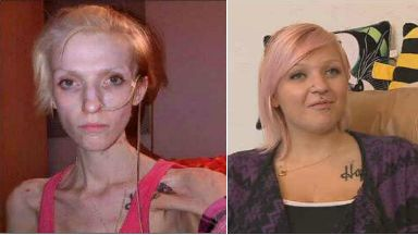 Woman battles 'world's most dangerous eating disorder'