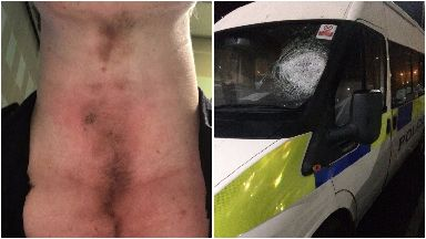 Bruises on a police officer and a police van after Edinburgh Bonfire night 2017.